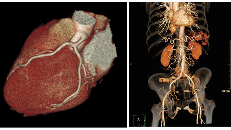 Herz Computertomographie