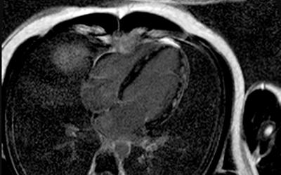 Magnetresonanzuntersuchung des Herzen